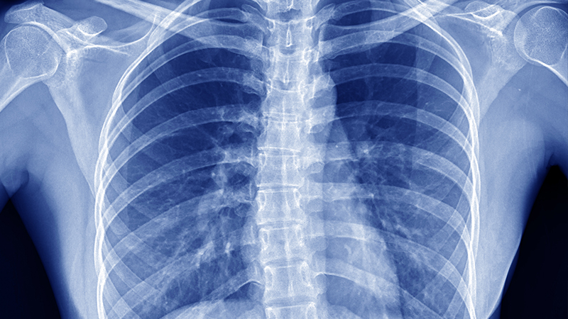 Chest x-ray at an Oregon diagnostic imaging center