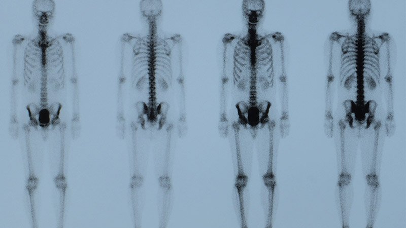 Full-body x-ray from a nuclear medicine imaging Oregon